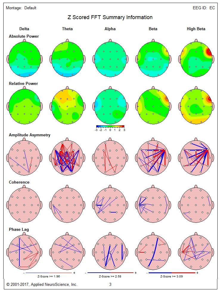 هزینه تفسیر نقشه مغزی QEEG